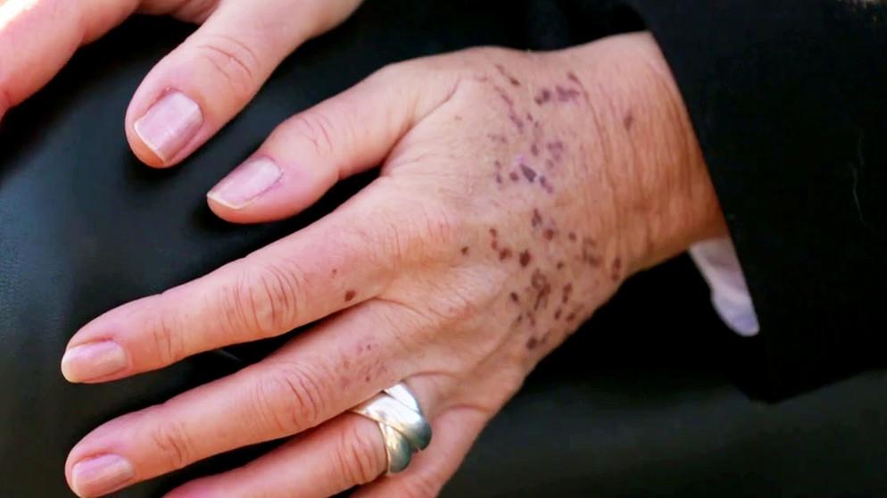 Braune flecken auf der hand