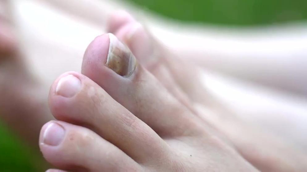 Ziehen lassen zehennagel eingewachsener Großen Zehennagel