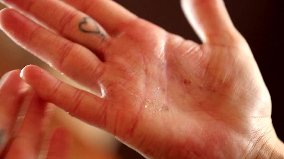 Ringfinger juckt bedeutung linker Die Energie