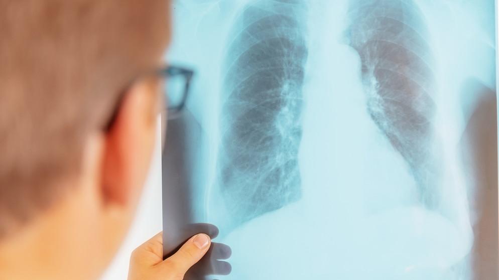 Ist tuberkulose ansteckend