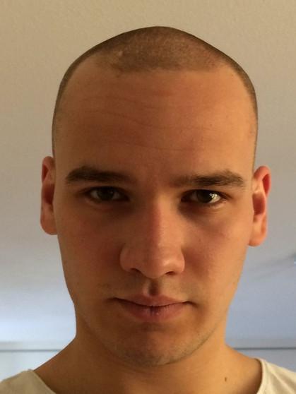 """Haarausfall mit Anfang 48: """"Mein Kopf sieht aus wie ein Deo-Roller ..."""