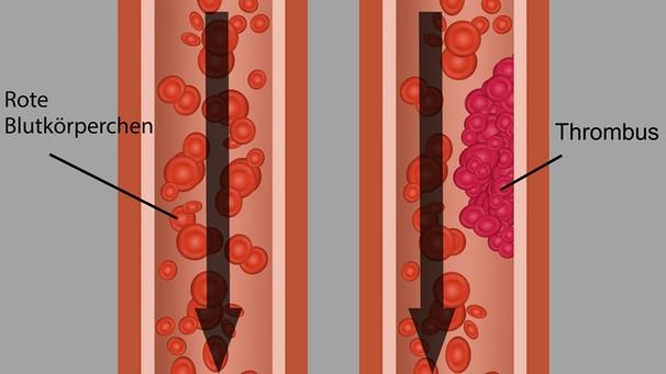Thrombose: Muskelkater? Oder Thrombose?