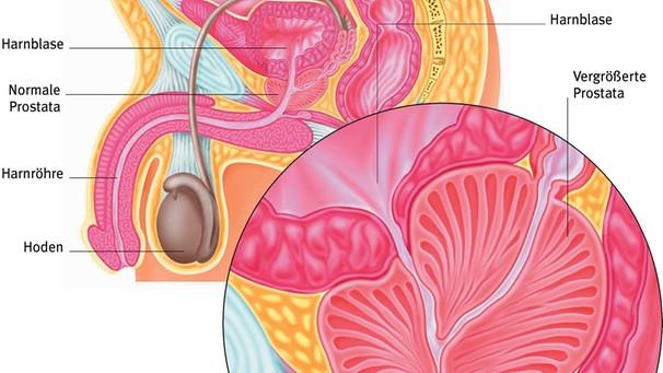 Was ist die Prostata: Grundwissen über die Prostata ...