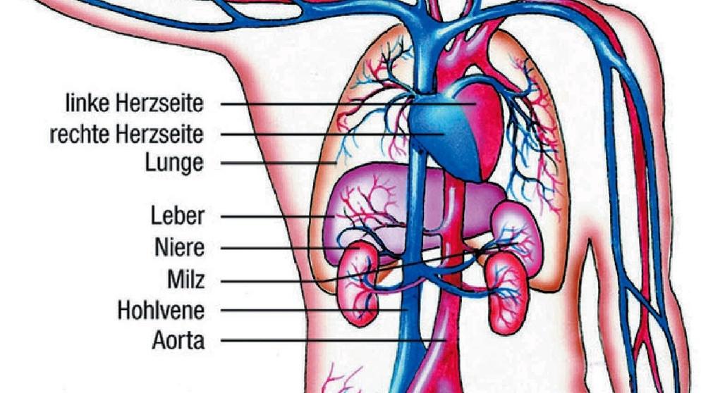 Arteriosklerose usw.: Verkalken der Blutgefäße | Themen von A - Z ...
