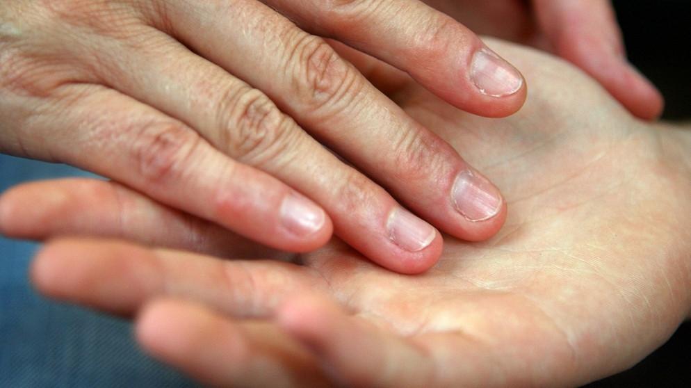 Dupuytren'sche Kontraktur: Bindegewebe in der Hand ...