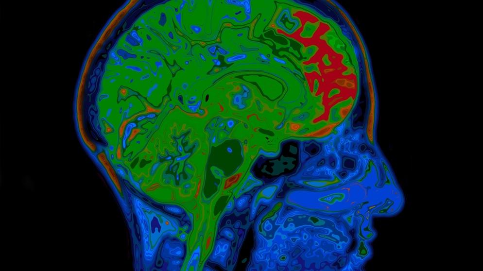 Demenzforschung: Risiko oder Chance? | IQ - Wissenschaft und ...