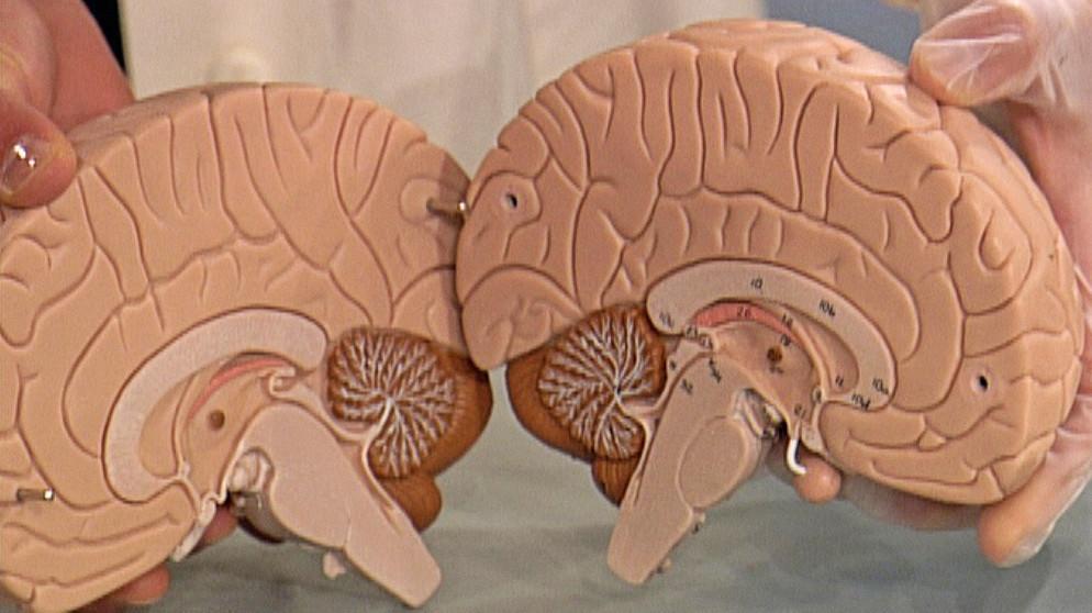 Das Gehirn: 1. Aufbau des Gehirns | Biologie | Telekolleg | BR.de
