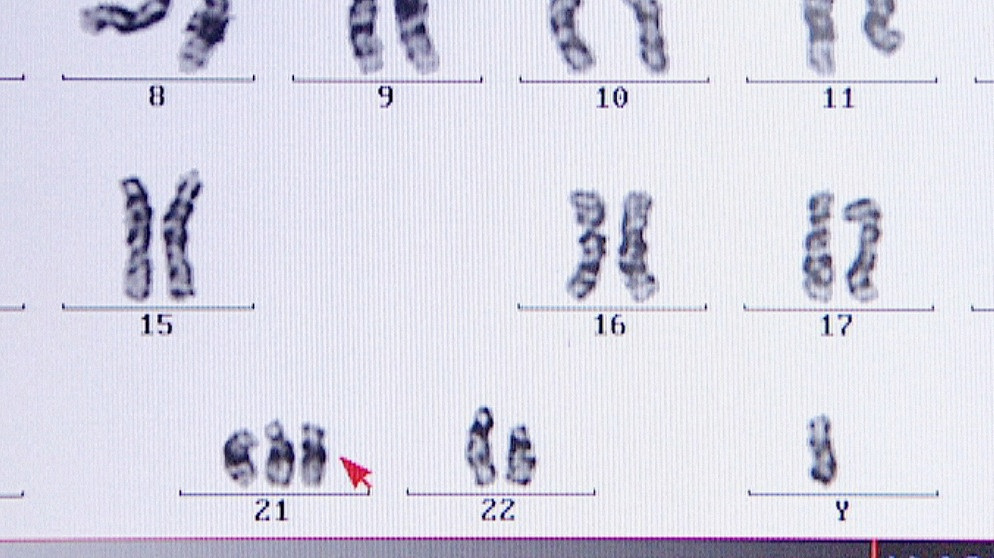 Humangenetik: 2. Gendefekte | Biologie | Telekolleg | BR.de