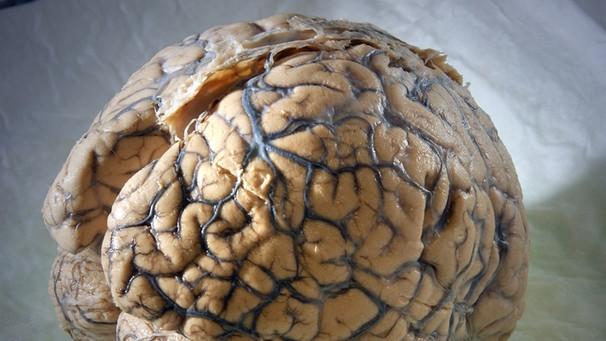 Reife des Gehirns