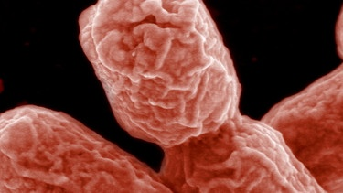 Escherichia coli Bakterium | Bild: picture-alliance/dpa